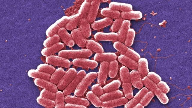A strain of the E. coli bacteria