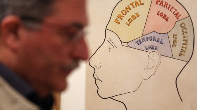 Even people with training in neuroscience are liable to mistake fiction where the brain is concerned, researchers have found (Photo: Dan Kitwood/Getty Images)