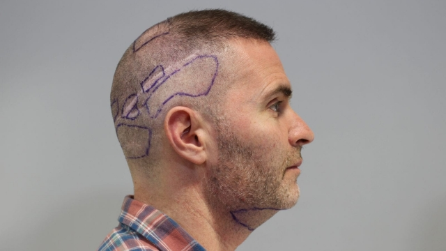 David Anderson before his seventh - and final - hair transplant.