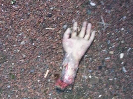 The 'severed hand' found on the A19. (Photo: Cleveland and Durham RPU)