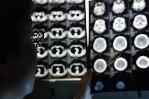 A radiologist examines CT scans (Photo: Getty Images)