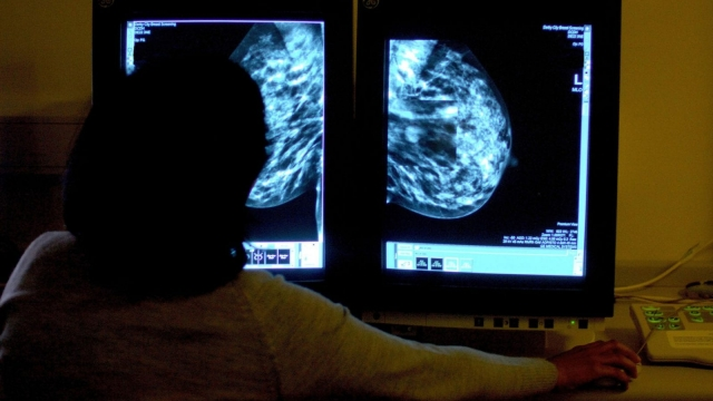 The current cancer waiting time targets have been in place in Scotland since 2011 (Photo: PA)