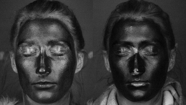 The image on the left shows how using a SPF moisturiser provides less protection (as it shows up lighter on a UV camera) and on the right it shows better coverage using suncream (Photo: Liverpool University)