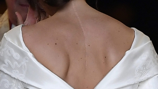 Princess Eugenie's dress shows off her scars to inspire others with scoliosis (Photo: Toby Melville/WPA Pool/Getty Images)