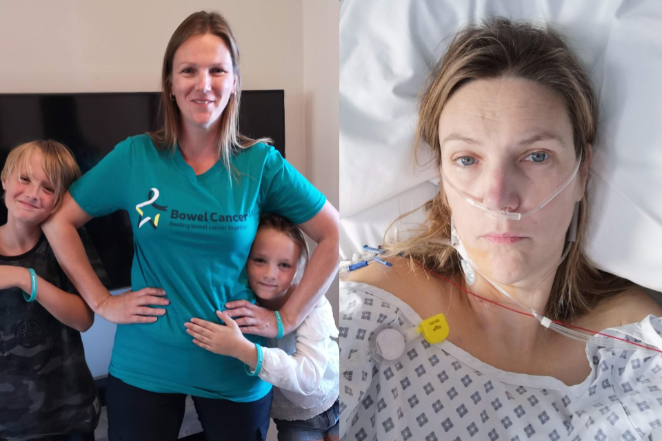 Mother 37 Finds Tumour Sticking Out Of Her Bottom After Her Bowel Cancer Was Dismissed As Ibs For Two Years
