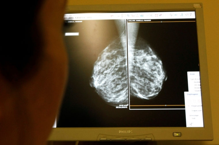 Scientists have discovered 352 genetic mutations, spread across 190 genes, that increase the chance of developing breast cancer
