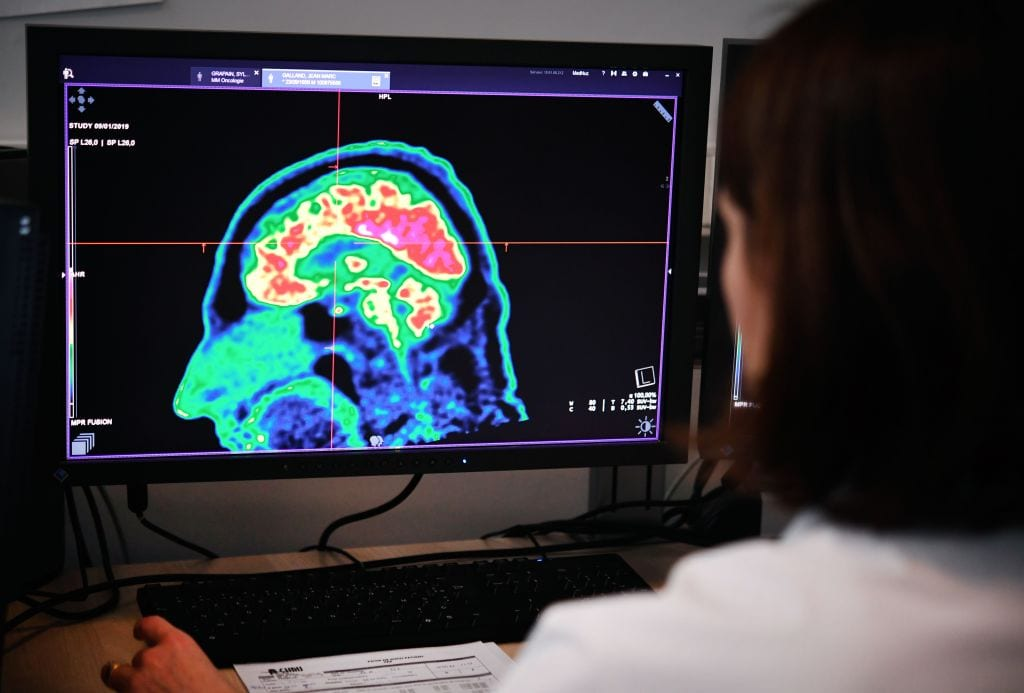 Asthma drug could prove to be an effective treatment for brain tumours